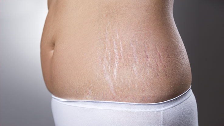 woman stretch marks